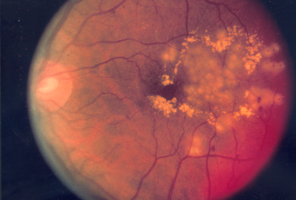 diabetic-fundus-examinations.png